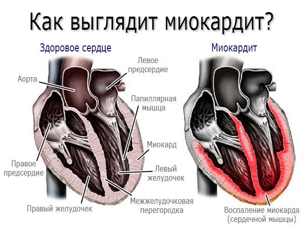 Что такое миокард сердца его функции болезни и лечение