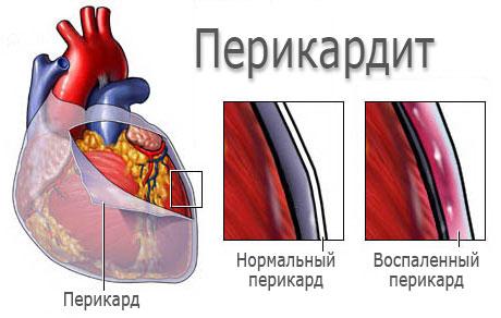 Развитие перикардита (патогенез)