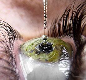 Как лечить кератит? Лечение кератита глаза