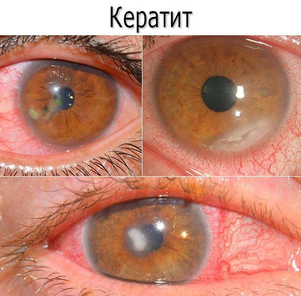 Кератит - симптомы