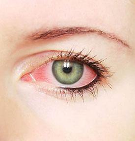 Лечение кератита уколы в глаз thumbnail
