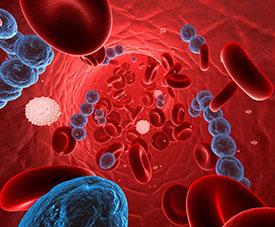 Сепсис – симптомы, причины, виды и лечение сепсиса