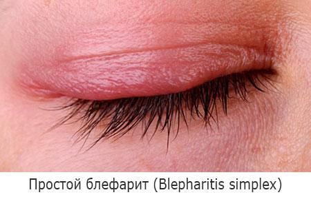 Простой блефарит (Blepharitis simplex)