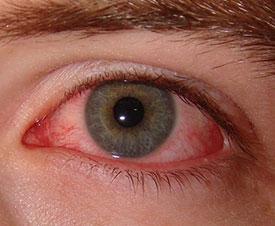 Блефарит – симптомы
