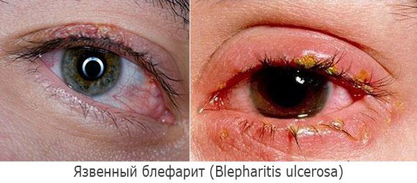 Язвенный блефарит (Blepharitis ulcerosa)
