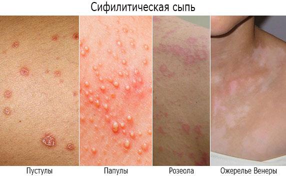Симптомы вторичного сифилиса - сифилитическая сыпь (папулы, пустулы, розеолы, ожерелье Венеры)