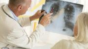 Преимущества лечения рака легких израильскими врачами