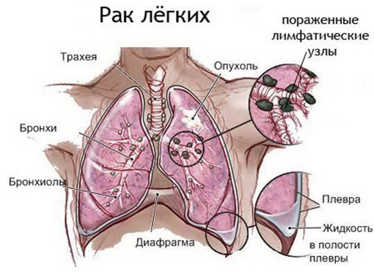 Как выглядит рак легких