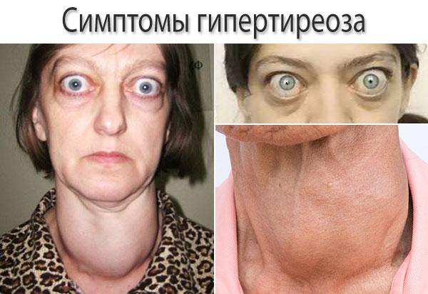 Симптомы гипертиреоза - фото