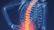 Остеопороз – симптомы, причины, лечение и профилактика остеопороза