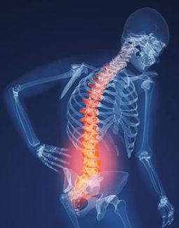 Симптомы и лечение остеопороза у женщин