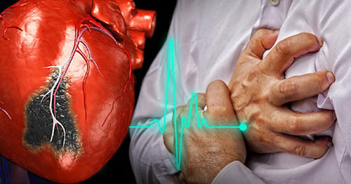 Первые признаки и симптомы инфаркта миокарда