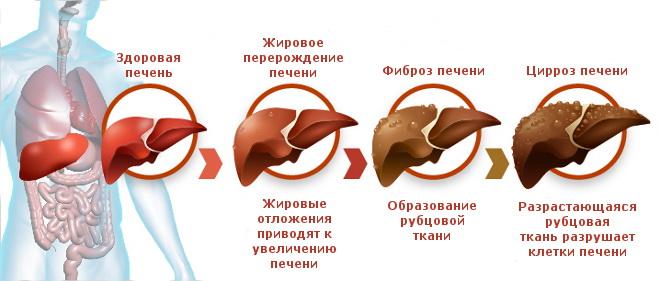 Стадии цирроза