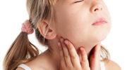Ангина у детей – симптомы и лечение. Как и чем лечить ангину у ребенка