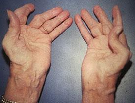 Бруцеллез - первые признаки, симптомы и осложнения