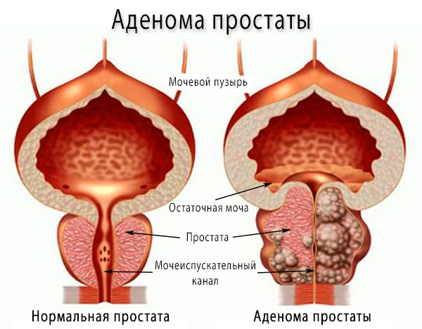 Как выглядит аденома простаты, фото