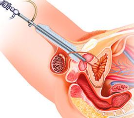 Хирургическое лечение - операция при аденоме простаты