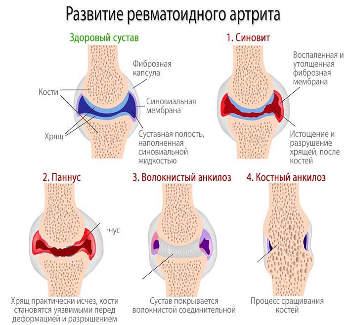 Стадии развития ревматоидного артрита