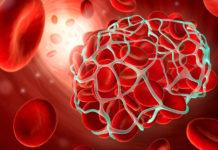Как разжижить кровь? Простые советы профилактики инфаркта, инсульта, тромбофлебита