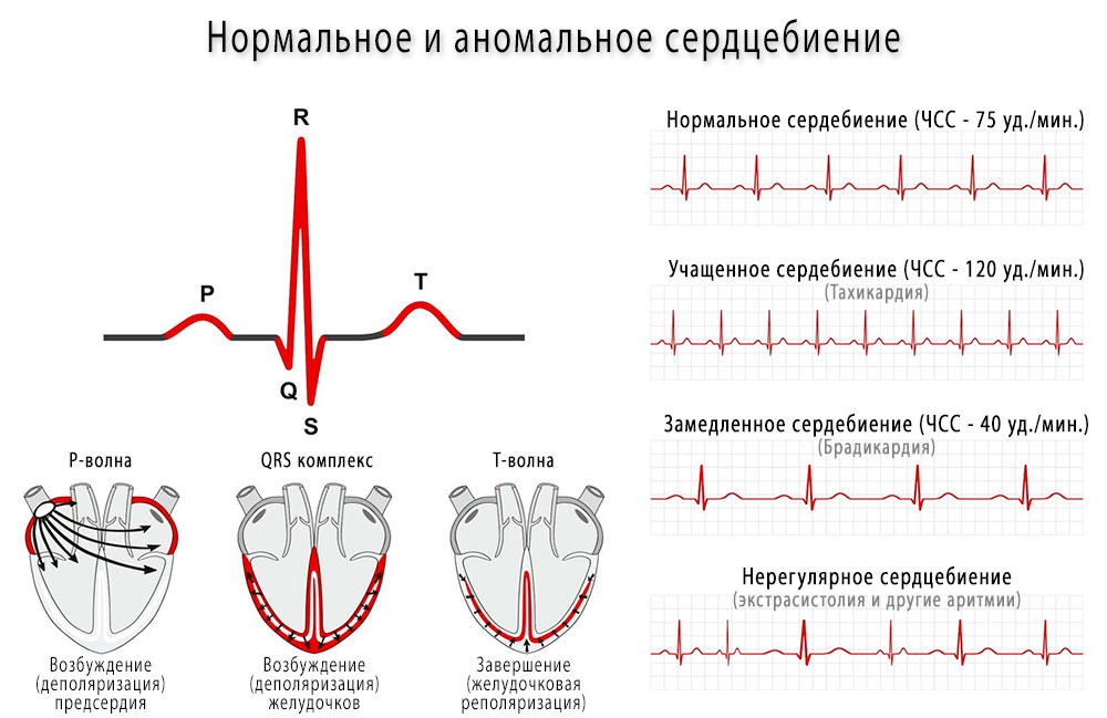 Сердечные сокращения - норма, брадикардия, тахикардия и другие аритмии