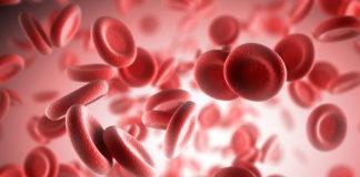 Железодефицитная анемия – симптомы, причины, лечение, диета