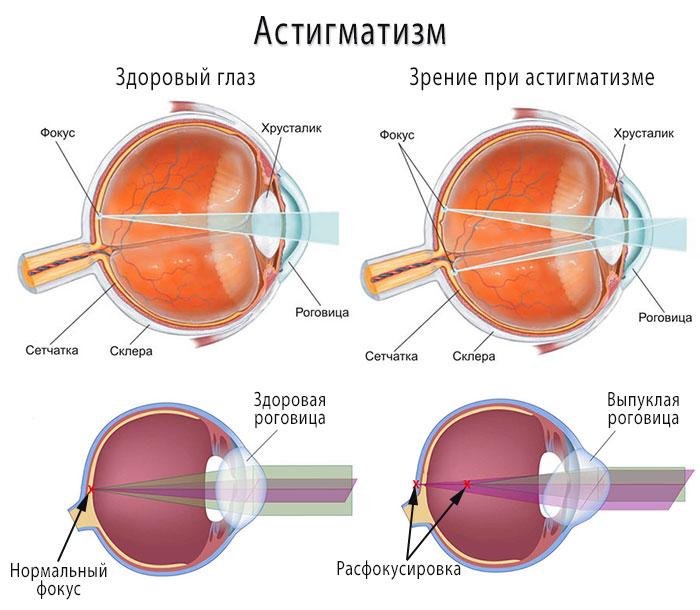 Причины астигматизма, фото