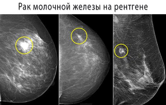 Рак молочной железы на снимке