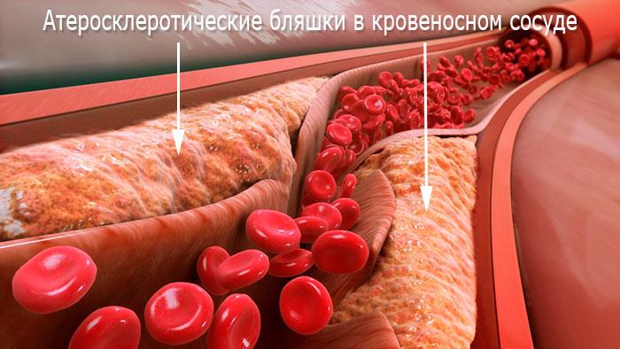 Причины кардиосклероза