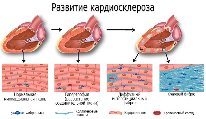 Развитие кардиосклероза (патогенез)