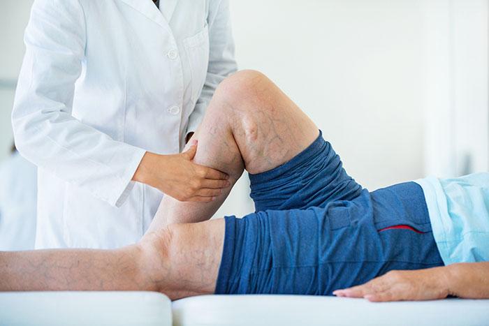Как лечить тромбофлебит? Схема лечения тромбофлебита, лекарства и операция при тромфболефбите