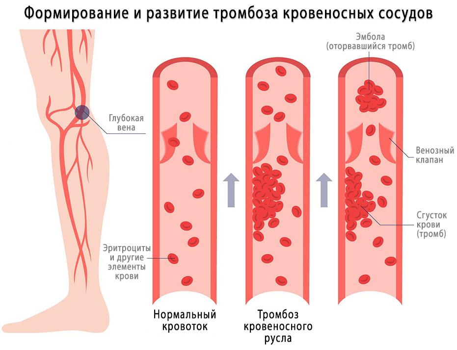 Тромбофлебит - причины и симптомы
