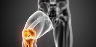 Артроз – симптомы и лечение