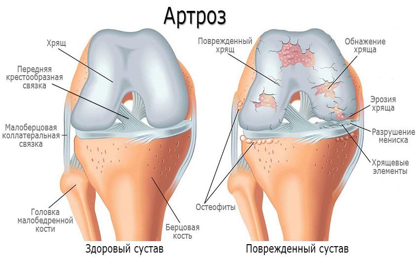 Причины артроза и механизм развития (патогенез) при артрозе