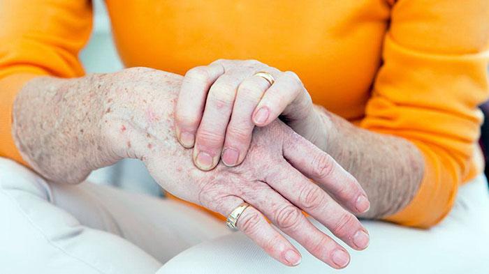 Первые признаки и симптомы артроза