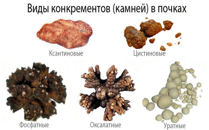 Камни в почках - виды