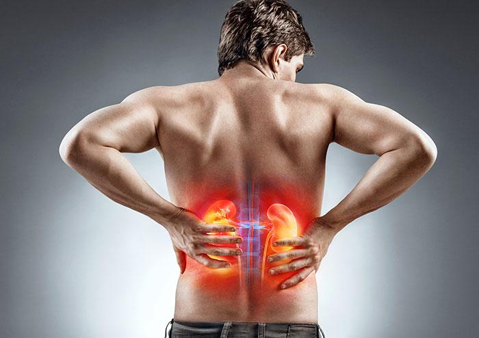 Мочекаменная болезнь – симптомы