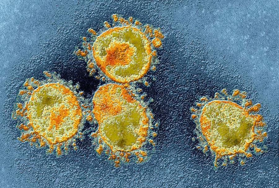 Коронавирусы (Coronaviridae) – симптомы, лечение, классификация и профилактика