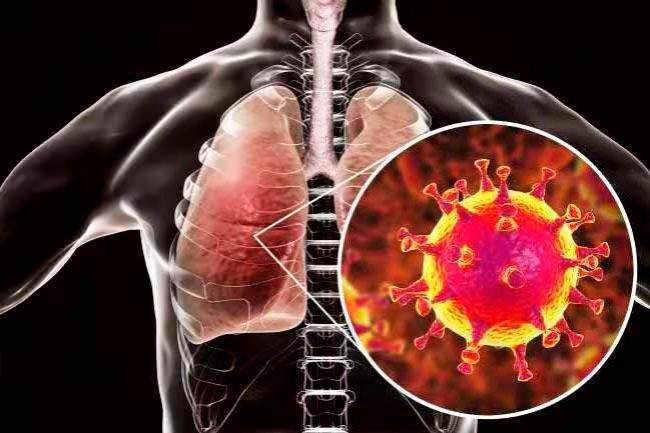 COVID-19 - симптомы и причины
