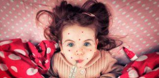 Краснуха – симптомы, фото, причины, лечение и профилактика краснухи
