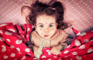 Краснуха у детей – симптомы и лечение