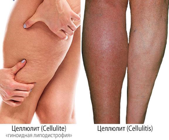 Cellulite и Cellulitis – в чем разница?