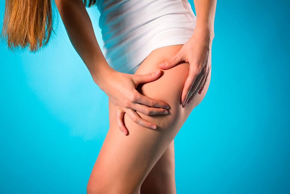 Целлюлит (Cellulite) – причины, фото, лечение и средства от целлюлита