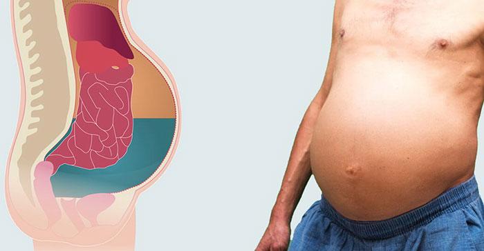 Первые признаки и симптомы асцита (водянки живота)