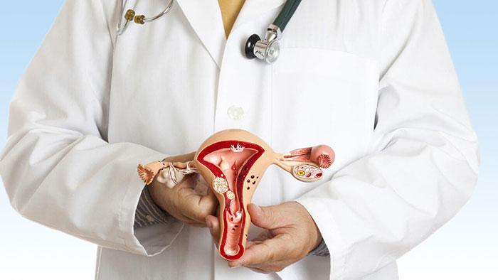 Как лечить эндометриоз? Лечение эндометриоза