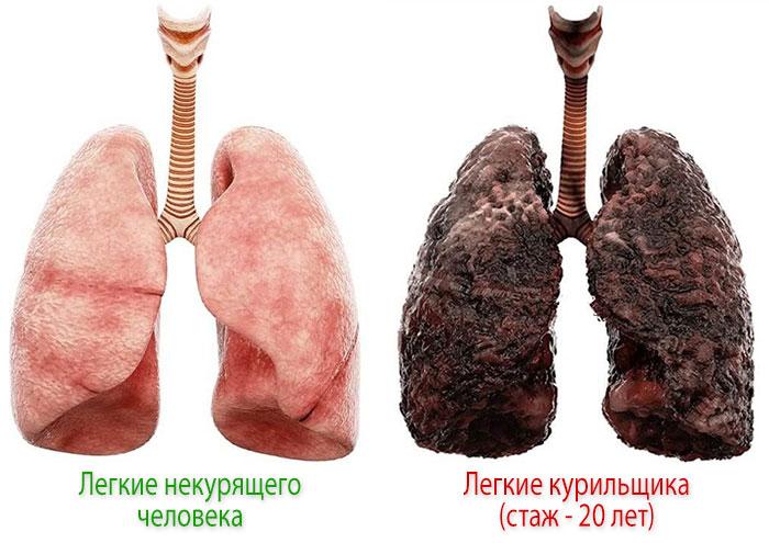 Какие болезни и нарушения вызывает курение? Легкие курильщика