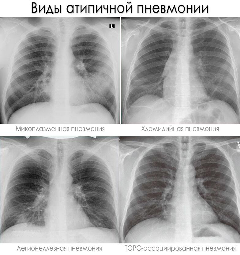 Атипичная пневмония на рентгене