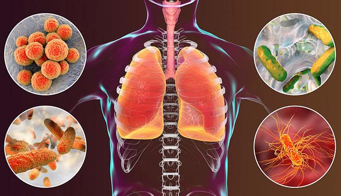 Причины атипичной пневмонии - возбудители