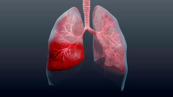 Первые признаки и симптомы атипичной пневмонии у детей и взрослых