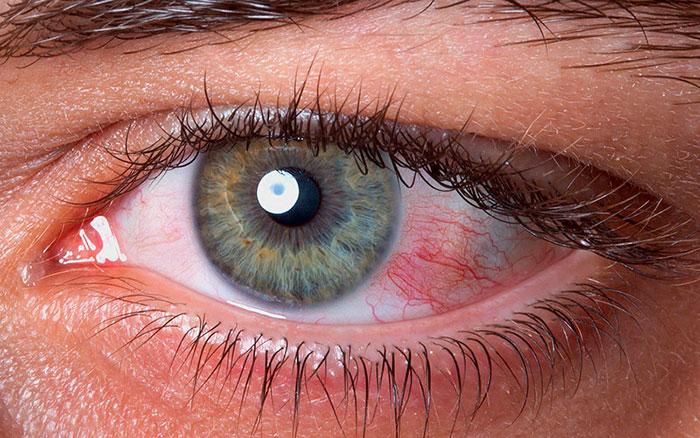 Боль в глазу - симптомы