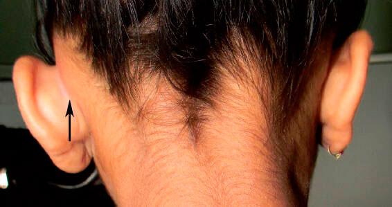 Симптомы мастоидита - фото